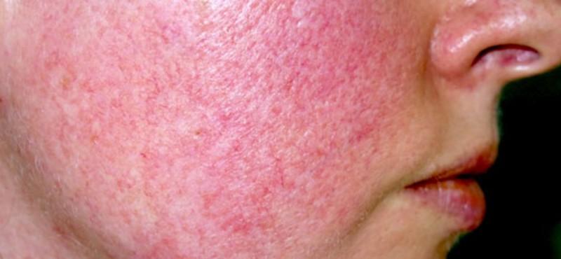 Kış Aylarında Altıncı Hastalık Riskine Dikkat